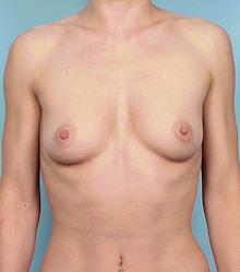 Front - Before Silicone Gel Breast Implants