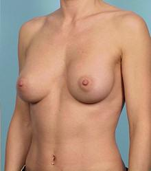 Oblique - After Gel Silicone Breast Implants