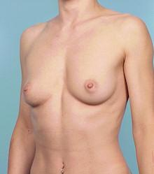 Oblique - Before Gel Silicone Breast Implants