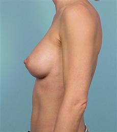 Side - After Silicone Gel Breast Implants