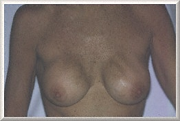 Степанова для увеличения груди
