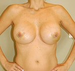10 days after breast augmentation