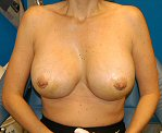 3 days after breast augmentation surgery
