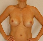 Before photo of breast augmentation patient