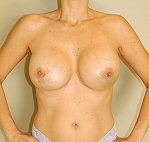 2 weeks post breast augmentation