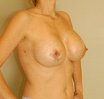 2 weeks post op , breast augmentation - oblique view
