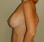 3 months side view - breast augmentation