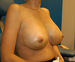 Oblique photo of breast augmentation post op