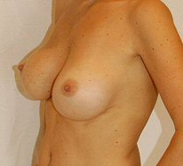 Post Op Breast Augmentation