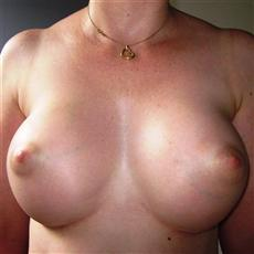 Breast Enhancement 3 Months Front