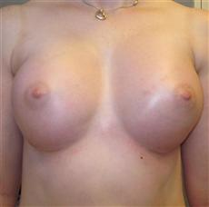 Breast Enhancement 5 Weeks Front