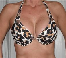 Bikini Top After Breast Implants