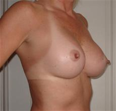 Oblique View 2 Months After Breast Implants