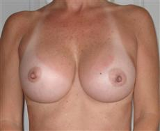 Two Months After Breast Implants