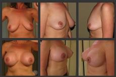 Before and After Breast Revision Collage - 20 weeks