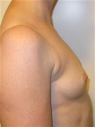 Before Silicone Gel Breast Implants Side