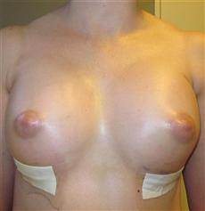 Breast Enhancement Day 2 Front