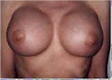 Front 4 Weeks After Breast Implants
