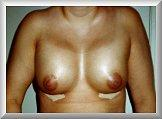 Front View 1 Day After Breast Enhancement