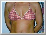 Front View With Bathing Suit Before Breast Implants