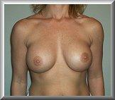Breast Augmentation Front After 3 Months