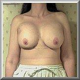 Breast Augmentation Front After 1 Day