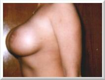 2 Years After Breast Implants