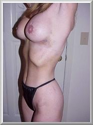 8 Weeks After Breast Augmentation