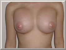 1 Week After Breast Augmentation Front View