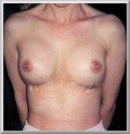 1 Day After Breast Enhancement