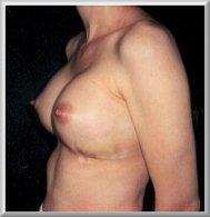 1 Day After Breast Augmentation