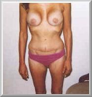 After Breast Augmentation Front View Month 1