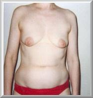 Before Breast Augmentation Front View
