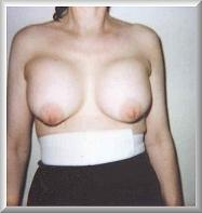 After Breast Augmentation Front View Week 1