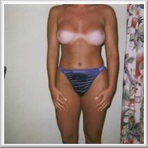 After Breast Augmentation Front View Month 6